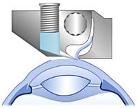 Een  microkeratoom